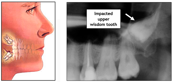 Wisdom Teeth Diagram - Jason Erasmus